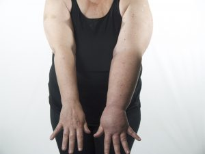 woman with arm lymphedema in one arm