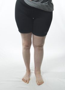 woman with leg lymphedema