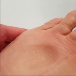 foot with pitting edema