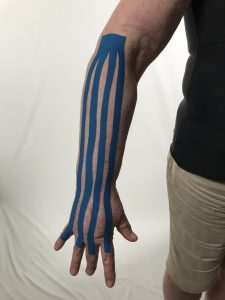 Lymphatic Taping