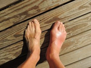 a pair of feet on a dock, one foot is red and swollen